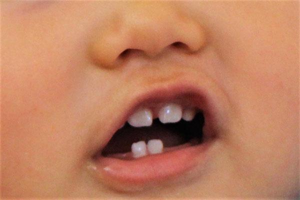 赤ちゃんの歯ぎしり